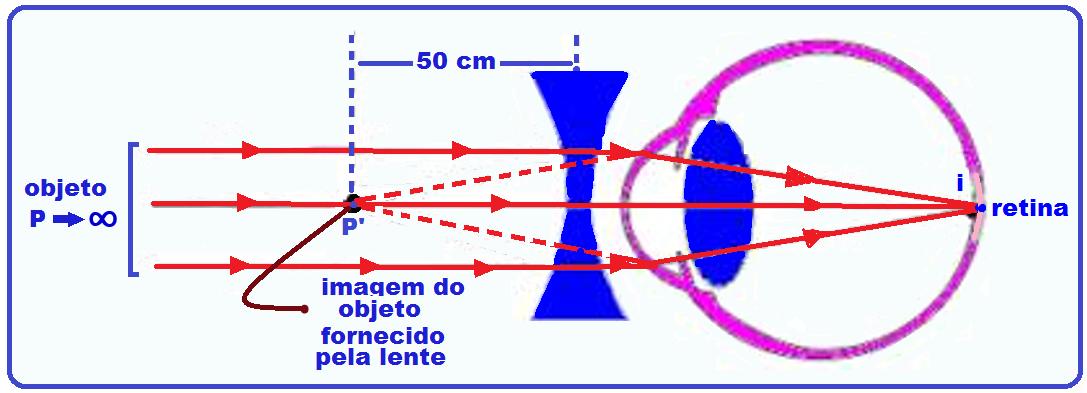 8a144cd4cb O feixe de luz proveniente do infinito ( P = ∞ ) deve ter sua imagem,  fornecida pela lente, formada no ponto P' = – 50cm onde o olho conjuga a  imagem ...