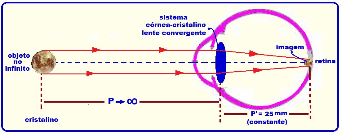 9a378f9fd7 Quando se olha para um objeto muito distante (no infinito), a imagem  forma-se na retina sem que seja necessário nenhum esforço de acomodação com  o ...
