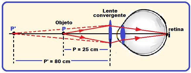 0512c6564e Olho humano – Globo ocular – Defeitos da visão | Física e Vestibular